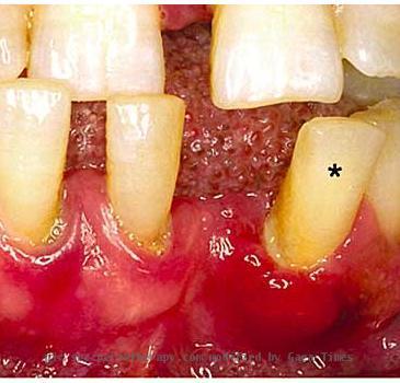 Gum Disease Pictures