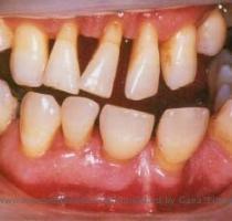 Gum Disease What Is Gum