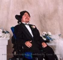 Duchenne Muscular Dystrophy's