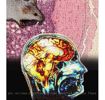 Brain stroke