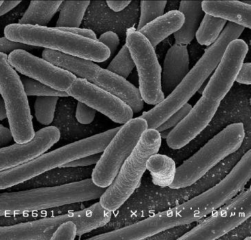 DNA testing on 2 000 year old bones in Italy reveal East Asian ancestry Bacteria  Credit  NIAID  Monday  December 28  2009