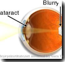 Mission Cataract USA What is Mission Cataract USA Mission Cataract USA offers free cataract surgery to people of all ages who have no means to pay Thanks to the dream of one eye surgeon in Fresno  California  one