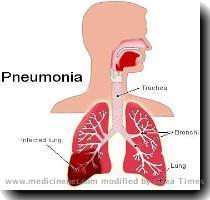 for treatment  Although most of these people recover  approximately five per cent will die from pneumonia  Pneumonia is the sixth leading cause of death in the United States  How do people  catch pneumonia   Some cases of pneumonia are contracted by breathing in small droplets that contain the organisms that can cause pneumonia  These droplets get into