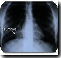 poliomyelitis html 02 Nov 2007 19 39 36k polio jpg 17 Jan 2003 20 24 2k pneumonia img jpg 17 Oct 2006 22 04 12k pneumonia html 02 Nov 2007 19 37 32k