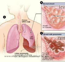 cause of pneumonia in the United States is the bacterium Streptococcus  strep to KOK us  pneumoniae   or pneumococcus  nu mo KOK us   Lobar Pneumonia Figure A shows the location of the lungs and airways in the body  It also shows pneumonia that s affecting the lower lobe of the left lung  Figure B shows normal