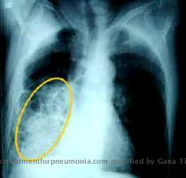 Pneumonia is an infection of one or both lungs caused by either bacteria or a virus  typically influenza  When either the bacteria or the virus in inhaled  the grow and spread thoughout the